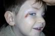 У одному із Чортківських дитячих садків розгорівся конфлікт (Фото)