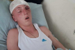 Побили і залишили помирати на дорозі: на Тернопільщині жорстоко розправилися з підлітком