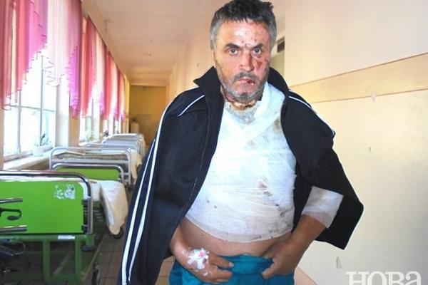 З жахливими опіками 55-річний чоловік ледве доїхав з Польщі до Тернополя