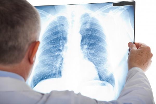 На Тернопільщині зафіксували 1 випадок туберкульозу та гепатиту «С»