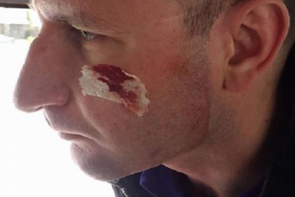 На Тернопільщині побили журналістів з Волині
