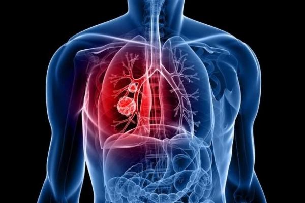 За день на Тернопільщині виявили два випадки туберкульозу