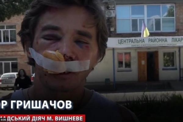На Київщині жорстоко побили відомого активіста, який бореться із забудовником за міський парк (Відео)