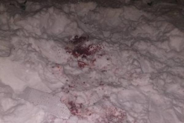 Понівечене обличчя та відірвана кисть: чоловік постраждав під час запуску феєрверків