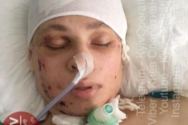 Тернополян просять допомогти розшукати родичів дівчини, яка декілька тижнів знаходиться в лікарні без свідомості
