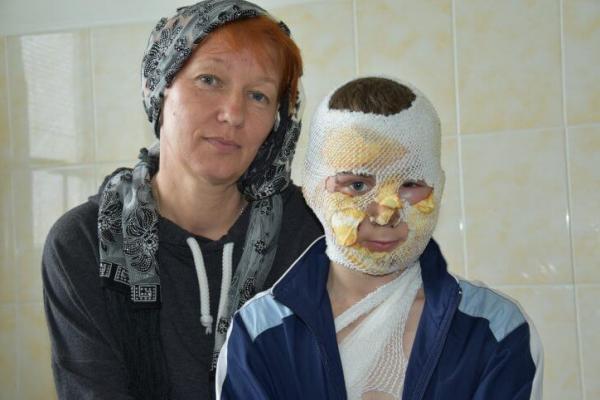10-річний хлопчик, який ледь не згорів в пожежі під час похорону дідуся, розповів як врятувався