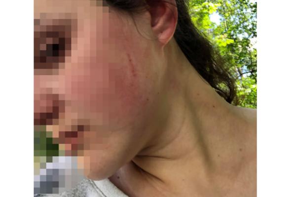 У Тернопільському парку невідомий чоловік побив молоду жінку