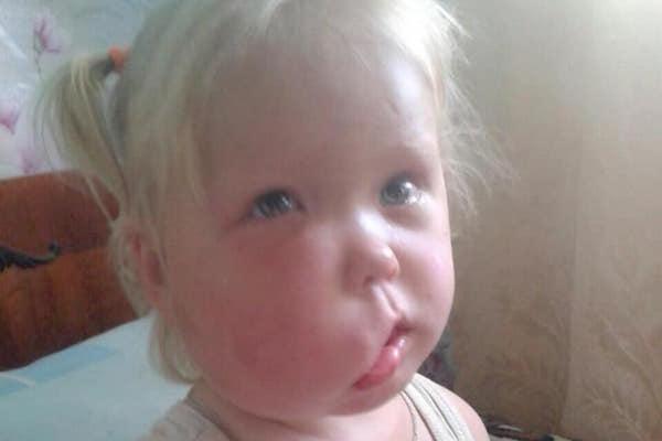 Дворічну дівчинку з вадами обличчя прооперує лікар Валіхновський