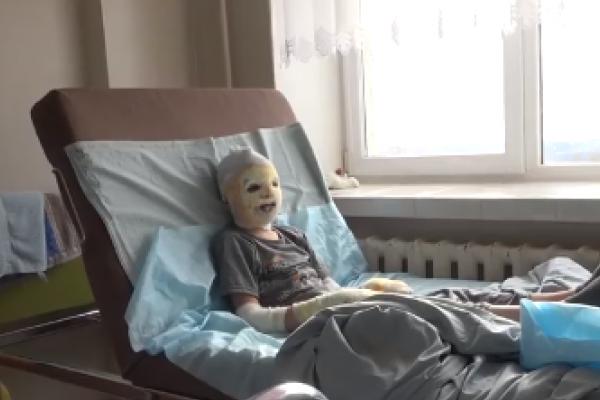 Двоє дітей досі в реанімації - медики про стан хлопців з села Угринів