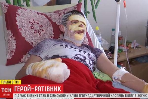 Обпечений у клубі на Тернопільщині Сергійко опритомнів і розповів про свого героя-рятівника