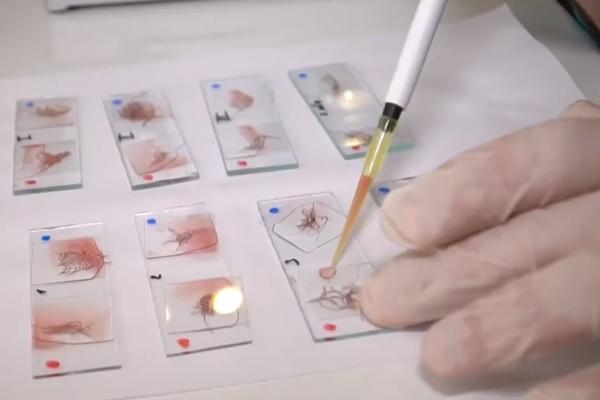 Тернопільські експерти ідентифікують злочинців за слідами біологічного походження