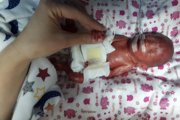 610 грамів щастя: в тернопільському перинатальному центрі виходили немовля, яке народилось на 24 тижні