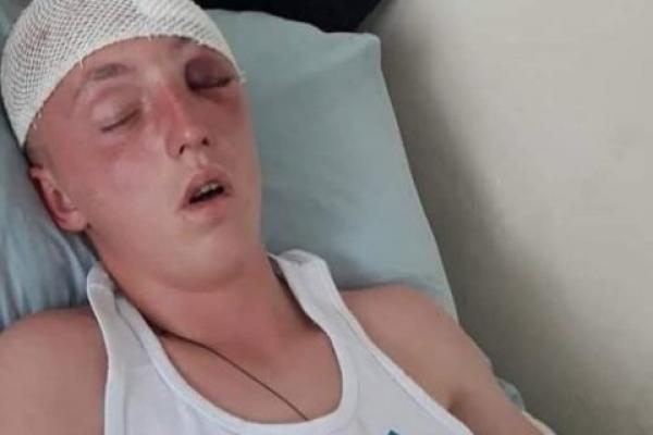 Юнака на Тернопільщині побили до напівсмерті: у нього відсутня частинка кістки черепа