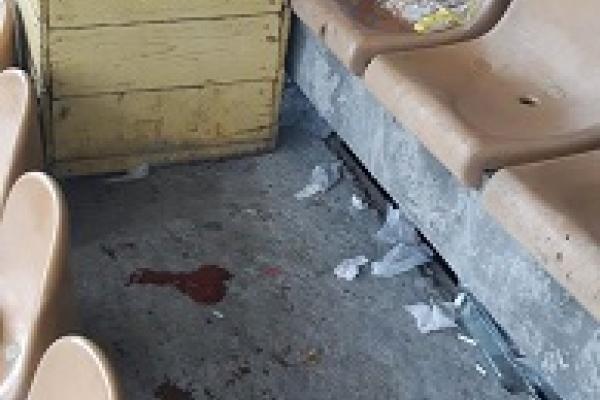 «Неодноразово прошу не смітити»: у Великих Гаях відпочивальники залишили після себе купи сміття