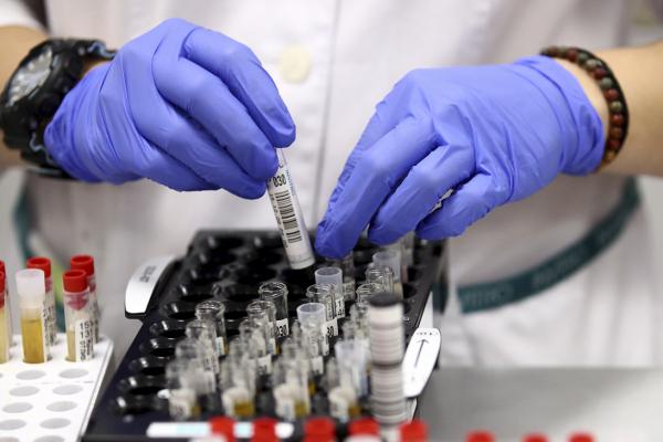 За минулу добу на Тернопільщині підтвердили 31 новий випадок COVID-19