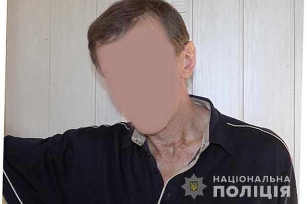 У Тернополі чоловік заліз до перукарні і хотів вкрасти комп'ютер